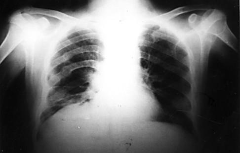 asthmachestxray